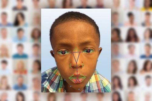 huella digital - El reconocimiento facial permitirá detectar una enfermedad genética